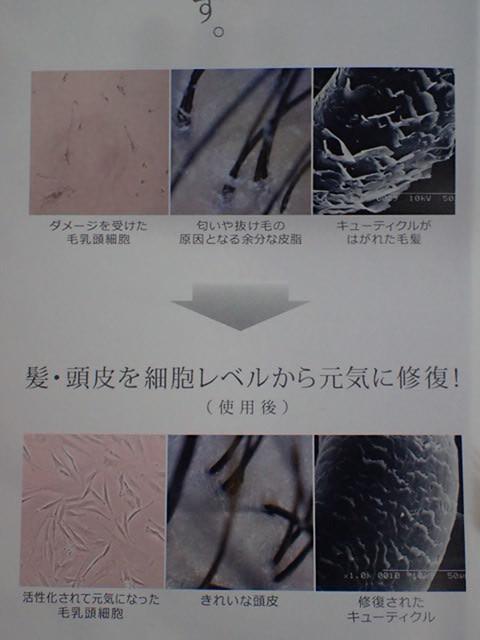 送料無料 育毛剤 サラヴィオ化粧品正規品詰め替500ml サラヴィオ女性用 M-1 サラビオ m-1 QUALITA SARAVIO qualita ミスト