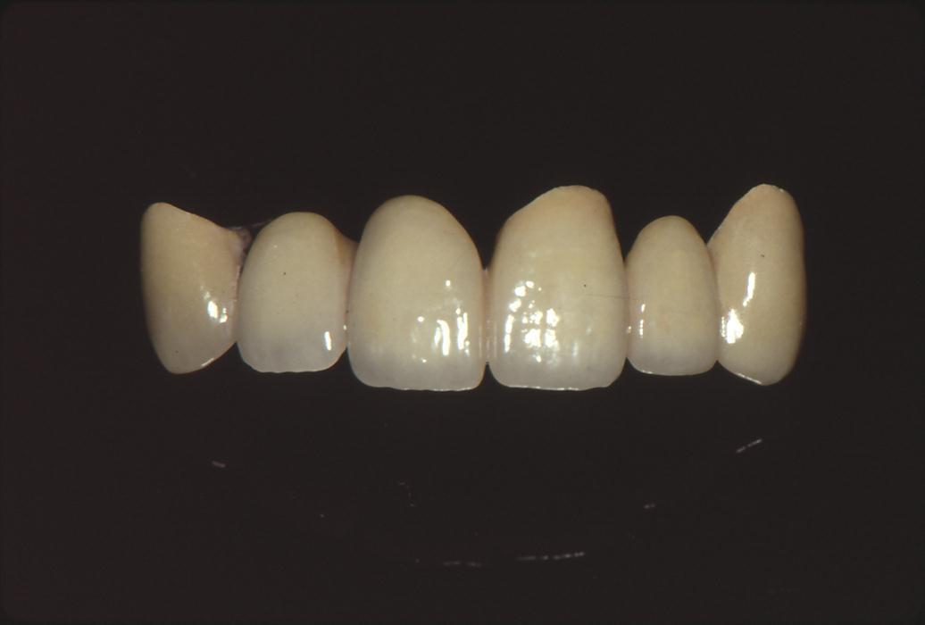 歯科技工 ミサキカラー7色セット  色分けの築盛(モザイクテクニック)ができる 7色のカラー築盛液 各38ml _画像5