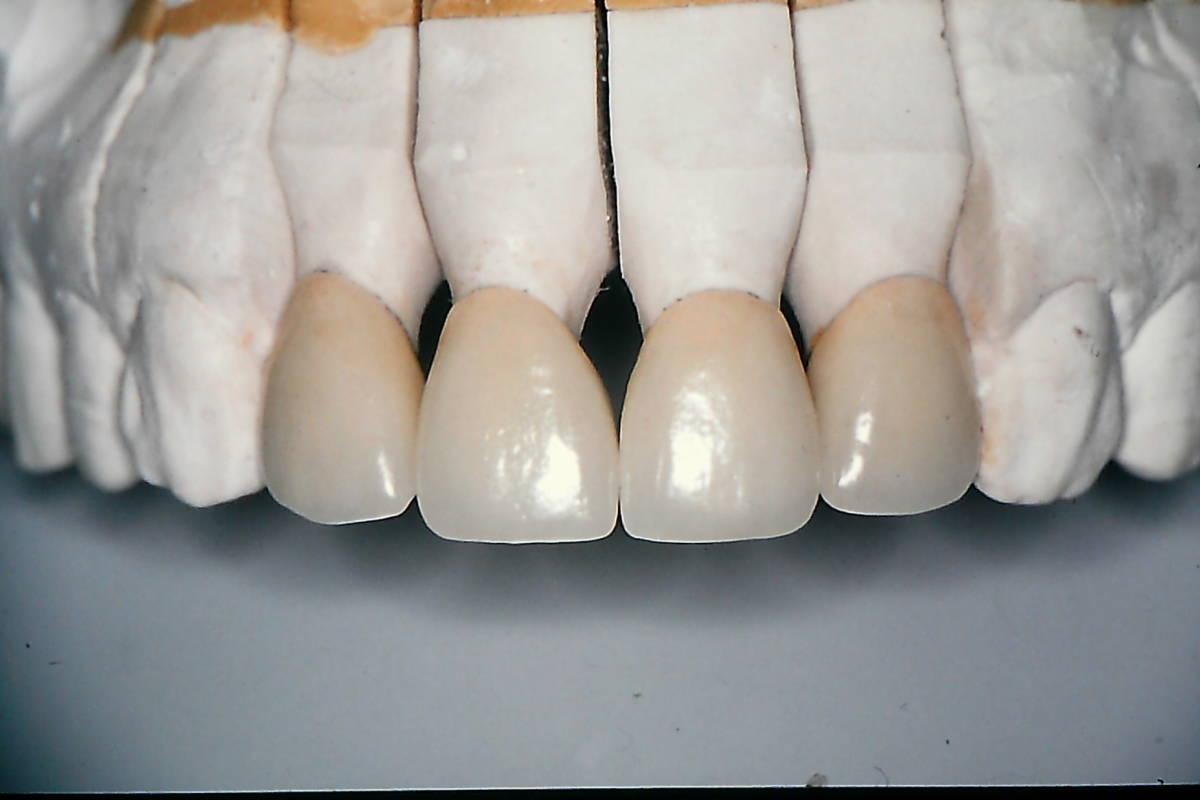 歯科技工 ミサキカラー7色セット  色分けの築盛(モザイクテクニック)ができる 7色のカラー築盛液 各38ml _画像7