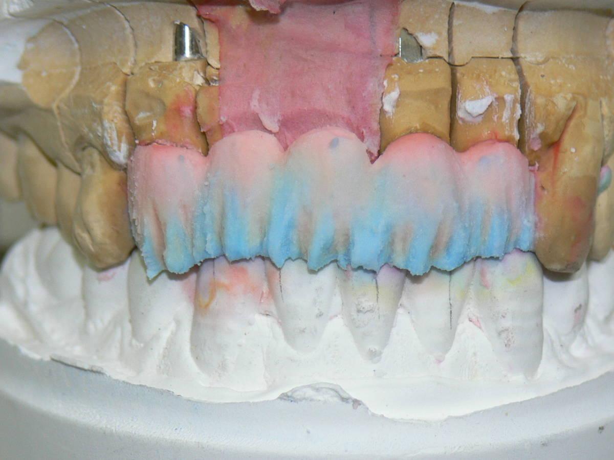歯科技工 ミサキカラー7色セット  色分けの築盛(モザイクテクニック)ができる 7色のカラー築盛液 各38ml _画像3