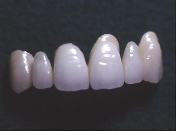 歯科技工 ミサキカラー7色セット  色分けの築盛(モザイクテクニック)ができる 7色のカラー築盛液 各38ml _画像6