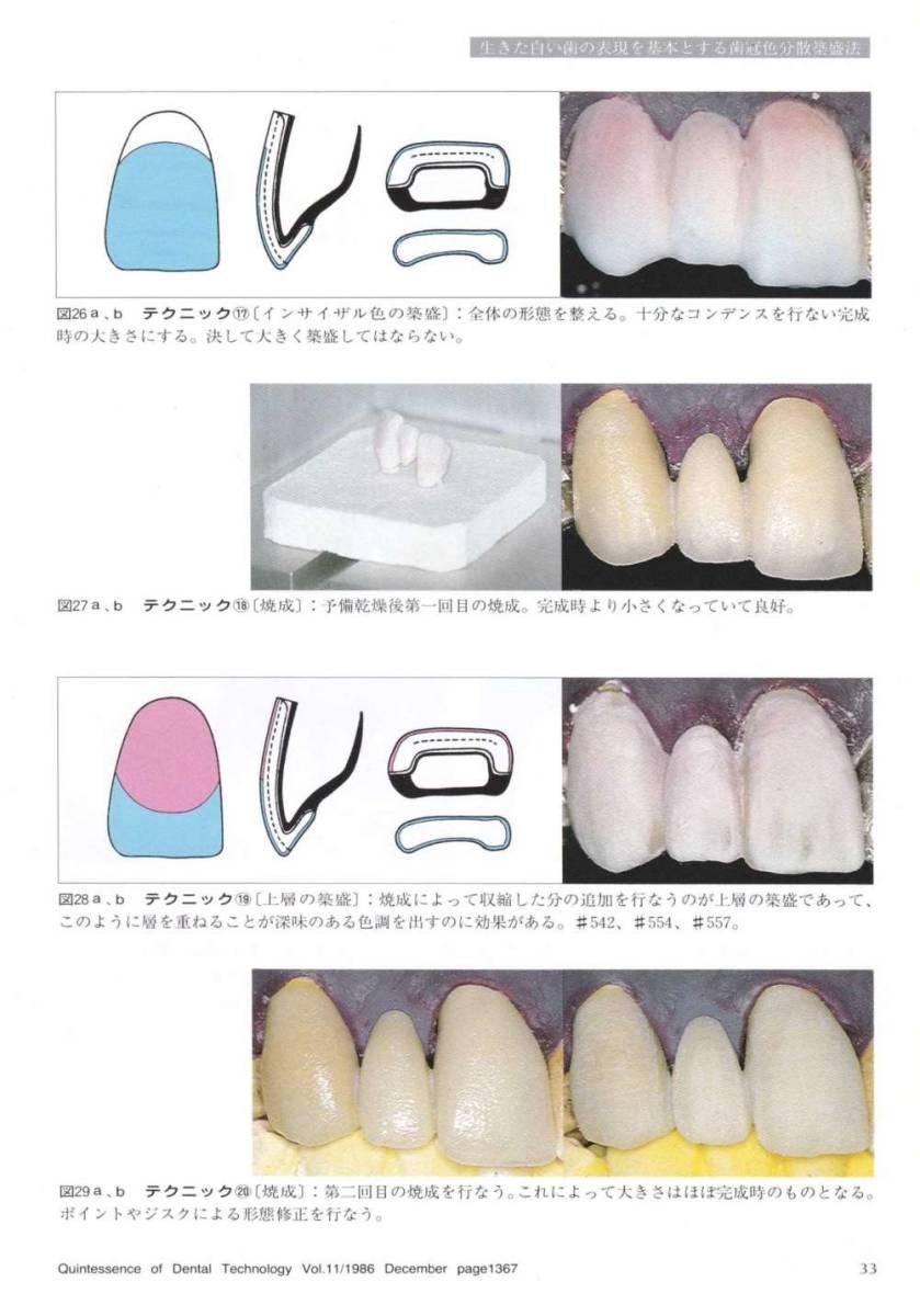 歯科技工 ミサキカラー7色セット  色分けの築盛(モザイクテクニック)ができる 7色のカラー築盛液 各38ml _画像8