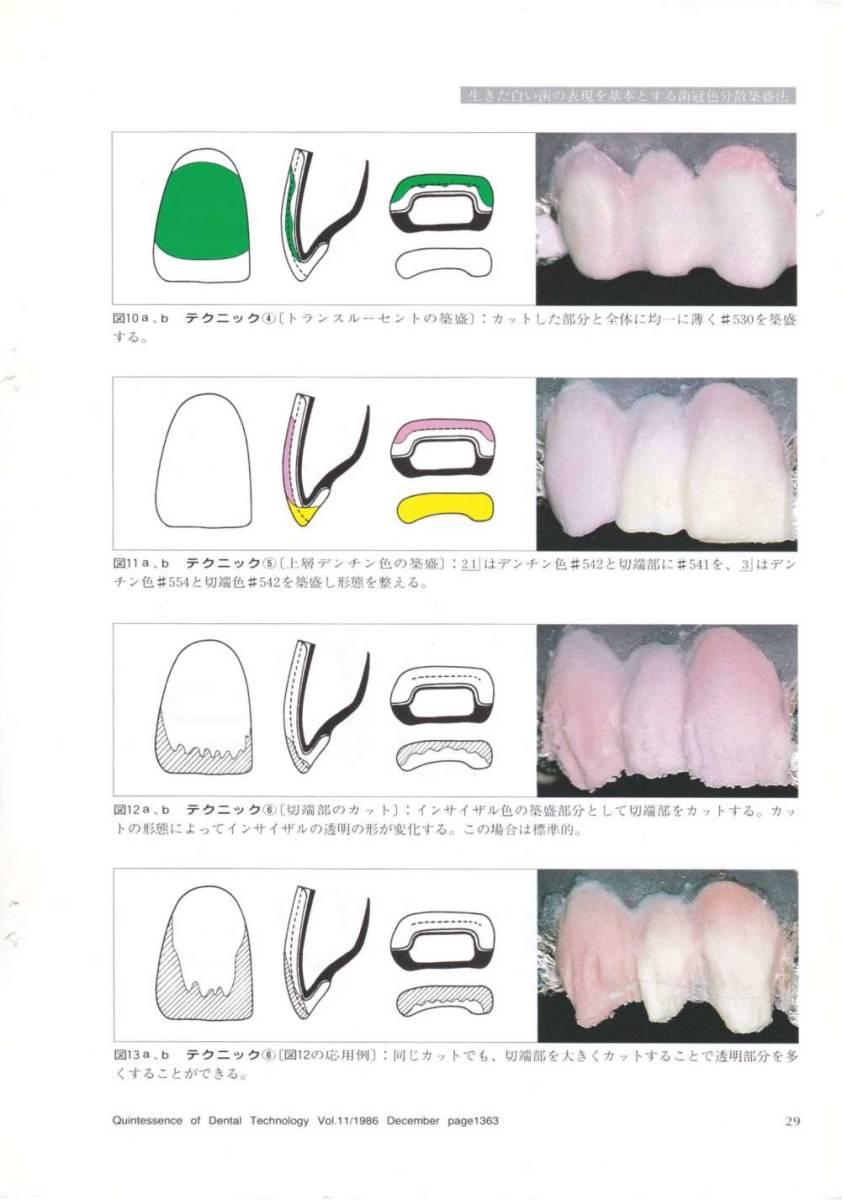 歯科技工 ミサキカラー7色セット  色分けの築盛(モザイクテクニック)ができる 7色のカラー築盛液 各38ml _画像10