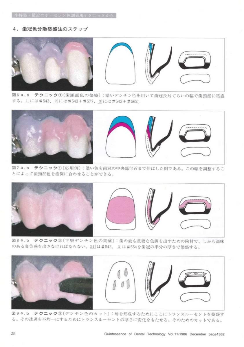 歯科技工 ミサキカラー7色セット  色分けの築盛(モザイクテクニック)ができる 7色のカラー築盛液 各38ml _画像9