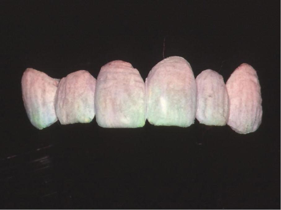 歯科技工 ミサキカラー7色セット  色分けの築盛(モザイクテクニック)ができる 7色のカラー築盛液 各38ml _画像4