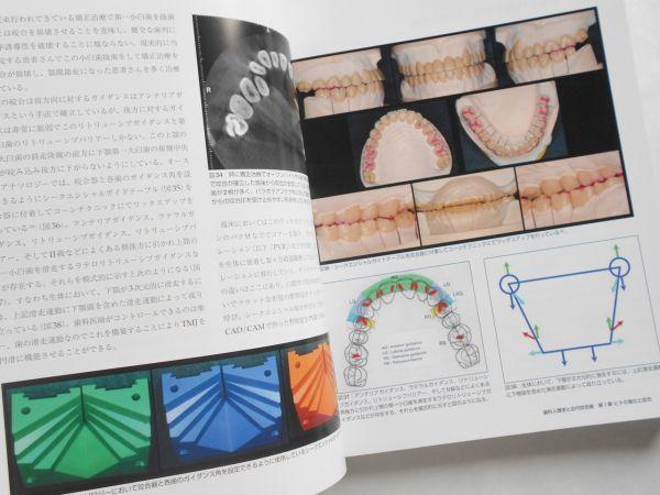 歯科人類学と近代咬合論 シークエンシャル咬合を基礎とした統括的歯科医療 鈴木光雄 ゼニス出版2018年インプラント治療歯科医師向専門書籍_画像5