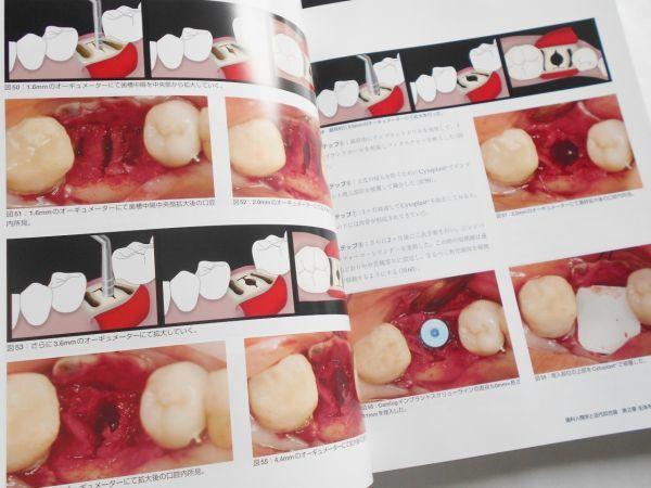 歯科人類学と近代咬合論 シークエンシャル咬合を基礎とした統括的歯科医療 鈴木光雄 ゼニス出版2018年インプラント治療歯科医師向専門書籍_画像6