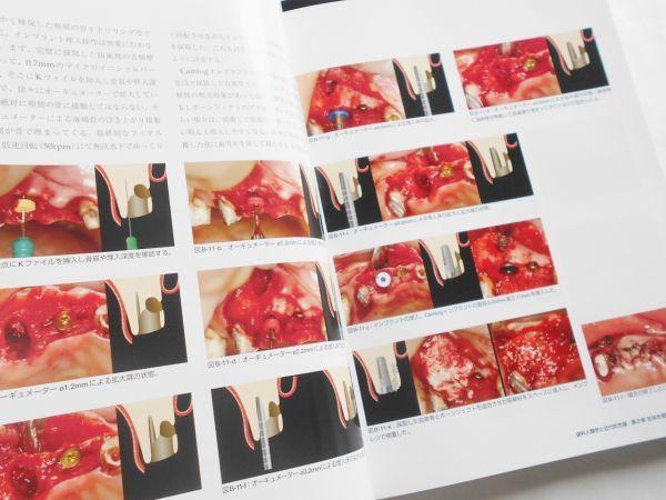 歯科人類学と近代咬合論 シークエンシャル咬合を基礎とした統括的歯科医療 鈴木光雄 ゼニス出版2018年インプラント治療歯科医師向専門書籍_画像7