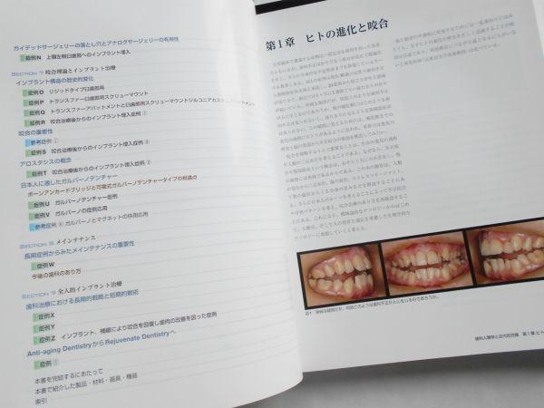歯科人類学と近代咬合論 シークエンシャル咬合を基礎とした統括的歯科医療 鈴木光雄 ゼニス出版2018年インプラント治療歯科医師向専門書籍_画像4