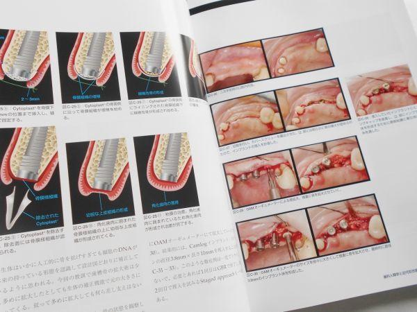 歯科人類学と近代咬合論 シークエンシャル咬合を基礎とした統括的歯科医療 鈴木光雄 ゼニス出版2018年インプラント治療歯科医師向専門書籍_画像9