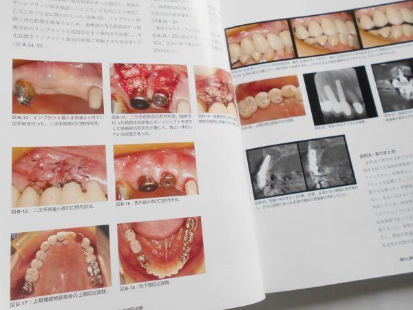 歯科人類学と近代咬合論 シークエンシャル咬合を基礎とした統括的歯科医療 鈴木光雄 ゼニス出版2018年インプラント治療歯科医師向専門書籍_画像8