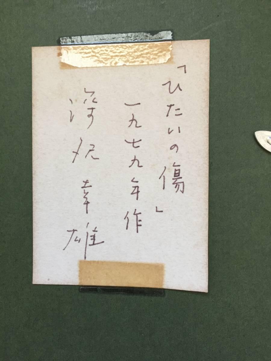 深沢幸雄(深澤幸雄) 『 ひたいの傷 』  銅版画 1979年 75部 額装  【真作保証】 _画像10