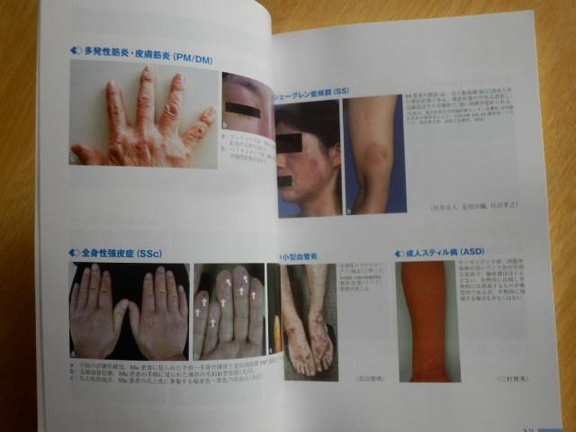 免疫・炎症疾患のすべて 日本医師会雑誌 第149巻・特別号(2)生涯教育シリーズ99 2020年10月15日発行 日本医師会_画像7