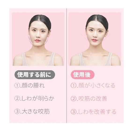 小顔美顔器ベルトリフトアップ 美顔器 顔痩せ トレーニング マッサージ 光エステ