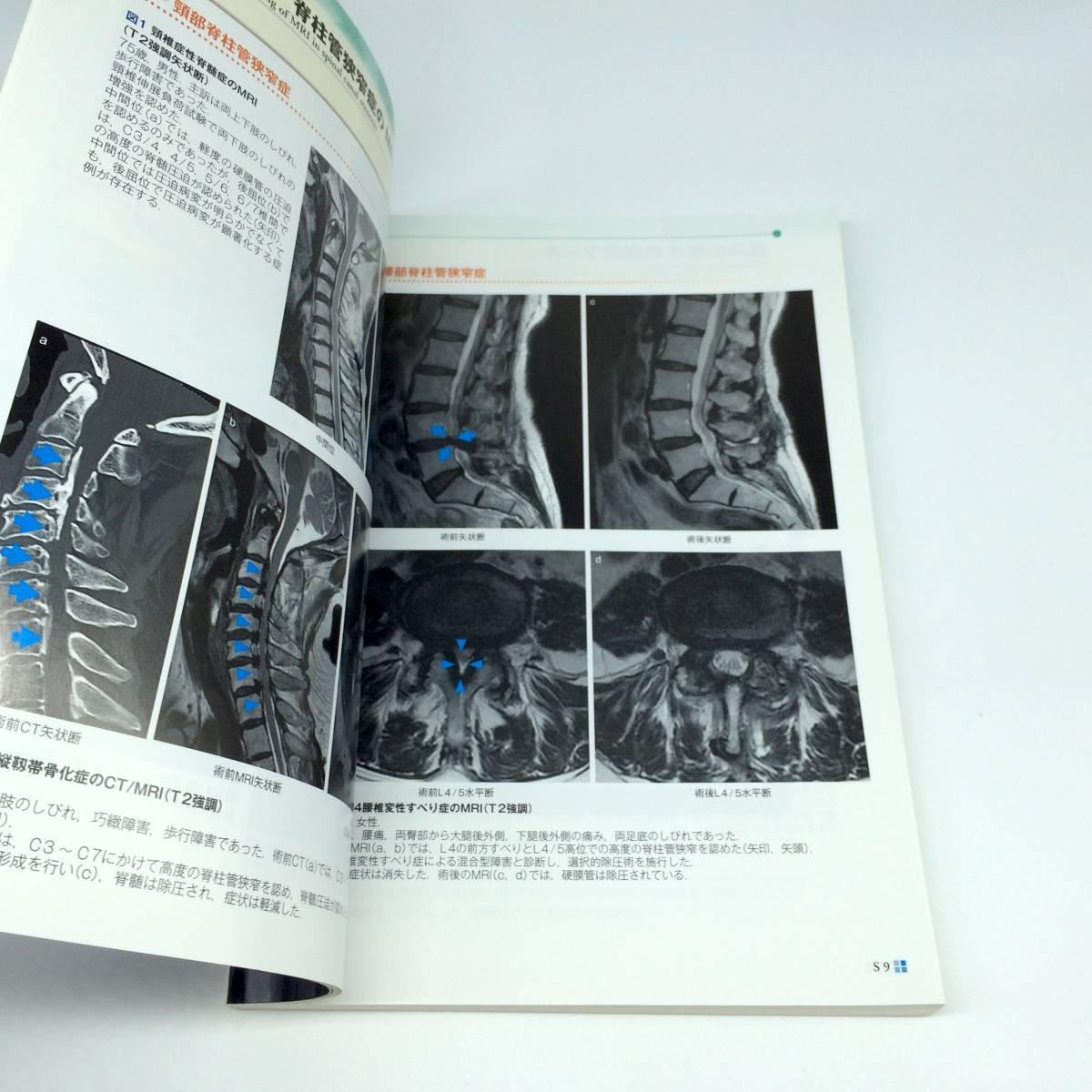 痛みのマネジメント update 基礎知識から緩和ケアまで 生涯教育シリーズ 86 日本医師会雑誌 第143巻 特別号(1)_画像4