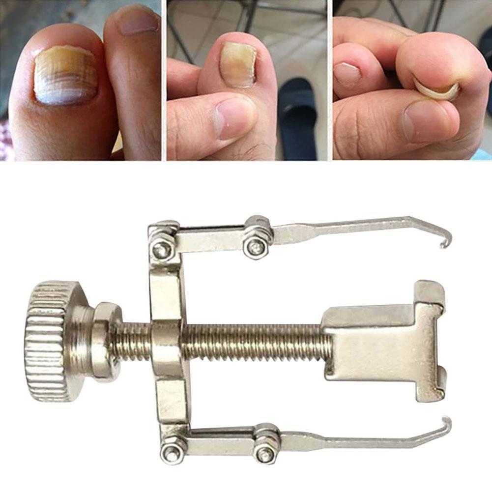 陥入爪つま先定着回復補正装置ペディキュア足の爪ケアツール矯正クリップブレースコレクターワイヤー定着_画像1
