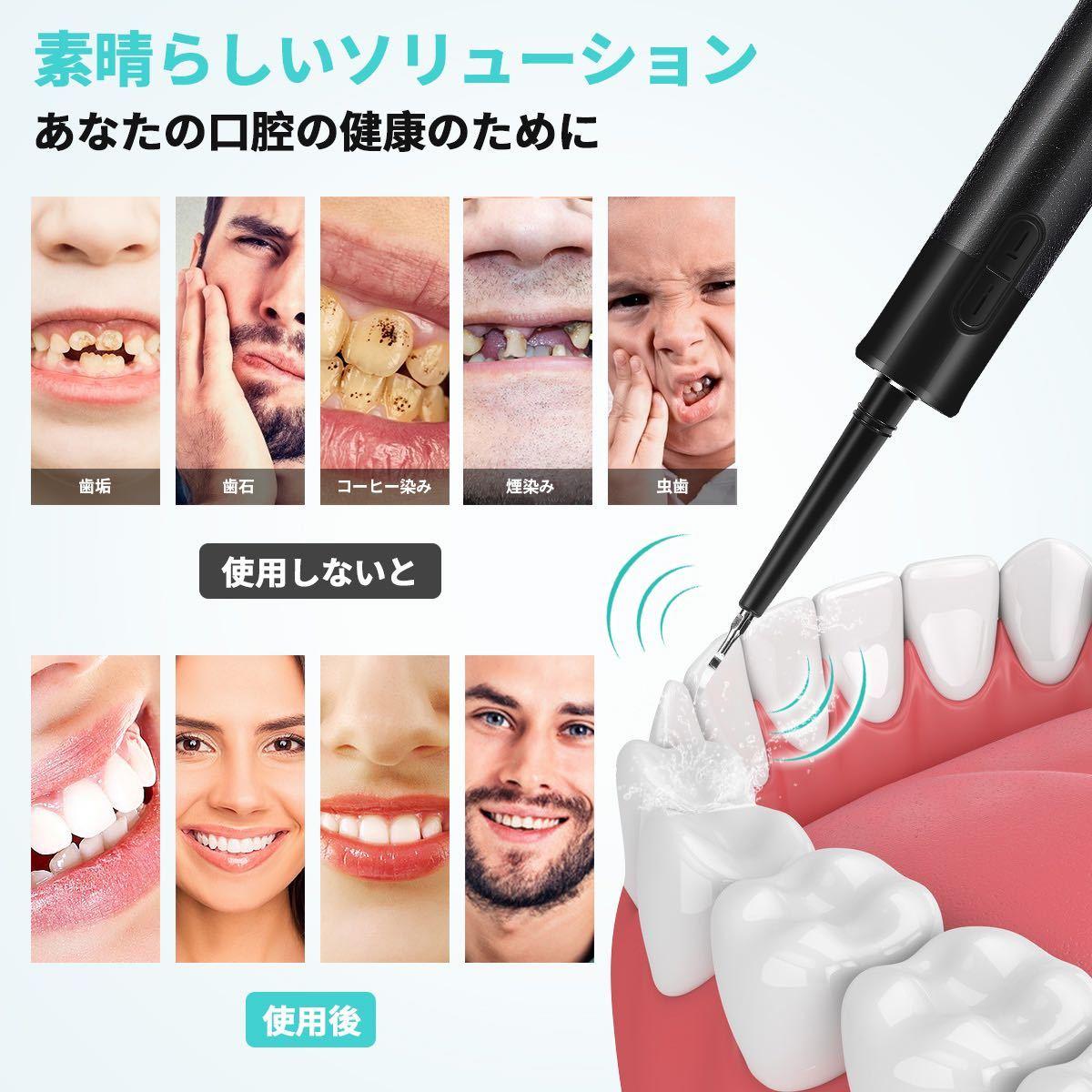 超音波歯清潔器 口腔洗浄器 歯周痛 歯ニヤ取る 歯垢除去 虫歯防止 食べカス 電動歯クリーナー 電動歯ブラシ