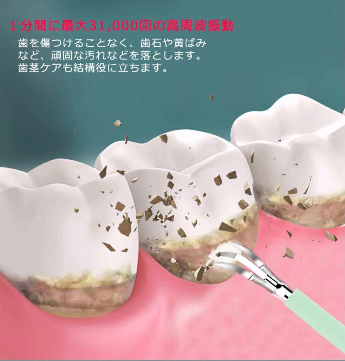 【5/21限定お値下げ】電動歯ブラシ 歯石取り 充電式 口腔ケア 音波振動歯ブラシ