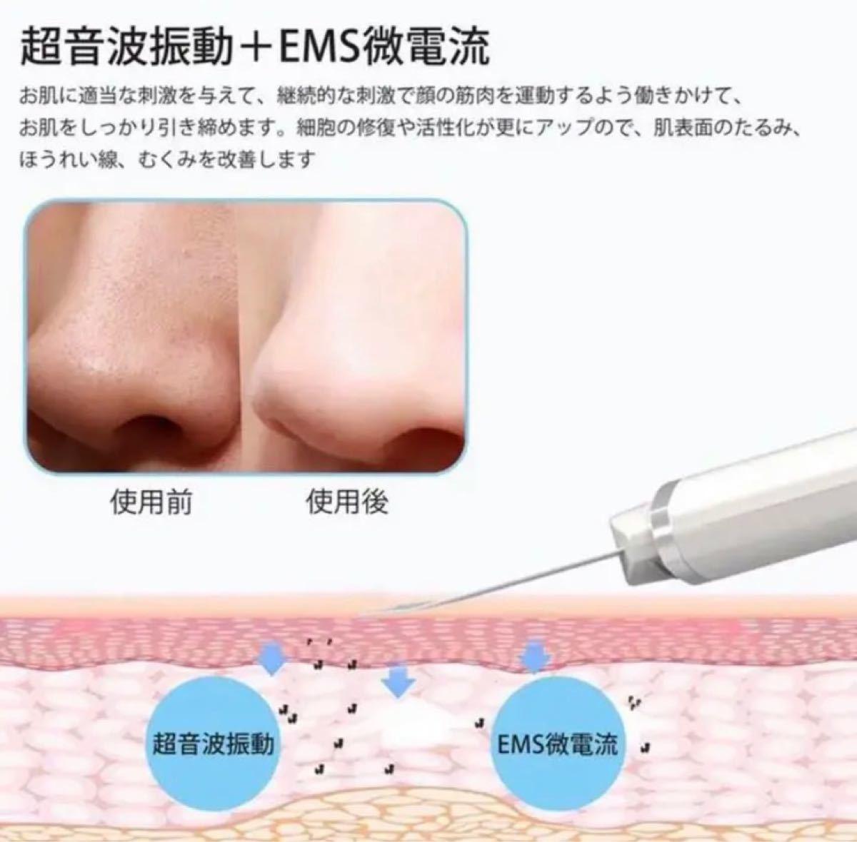 【新品・送料無料】ウォーターピーリング 美顔器 超音波 マイナスイオン EMS 超音波美顔器