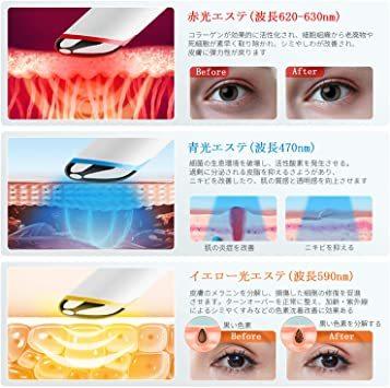 【新品未使用】ANLAN 目元ケア 美顔器 イオン導入 温熱ケア 超音波美顔器 3種類光エステ イオン導入美顔器 振動機能 LC_画像4