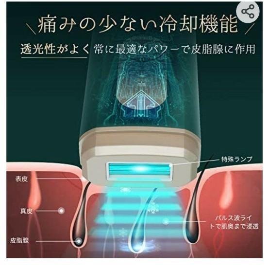 脱毛器 レーザー 永久脱毛 光美容器 光エステ 5段階調整可能 自動フラッシュ