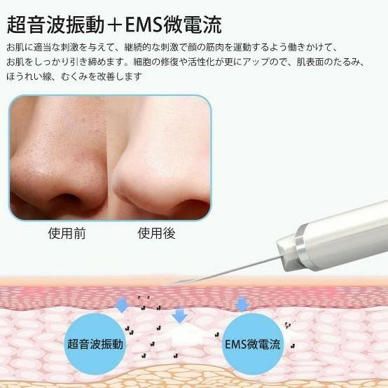 ウォーターピーリング ピーリング 美顔器 スマートピール 超音波振動 毛穴 黒ずみ ニキビ 角栓 角質 皮脂 EMSマッサージ
