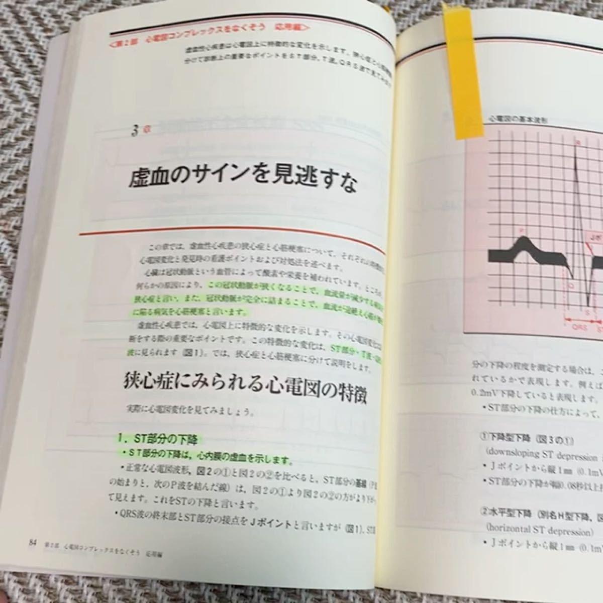 心電図コンプレックスをなくそう/榊原記念病院看護部 (著者)