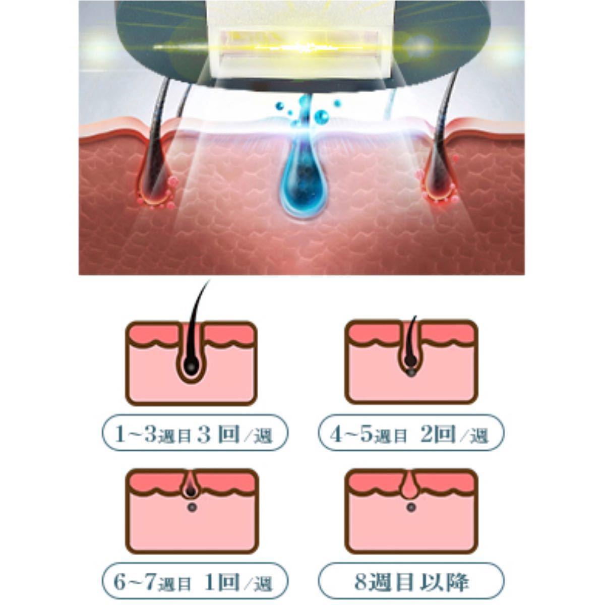 脱毛器 レーザー 99万回照射 冷感脱毛 冷却ケア機能付き IPL光脱毛器 フラッシュ式 永久脱毛 光美容器 5階段 8週間脱毛