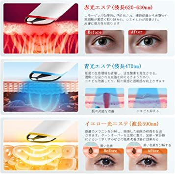 ANLAN 目元ケア 美顔器 イオン導入 温熱ケア 超音波美顔器 3種類光エステ イオン導入美顔器 振動機能 LCDディプレイ _画像4