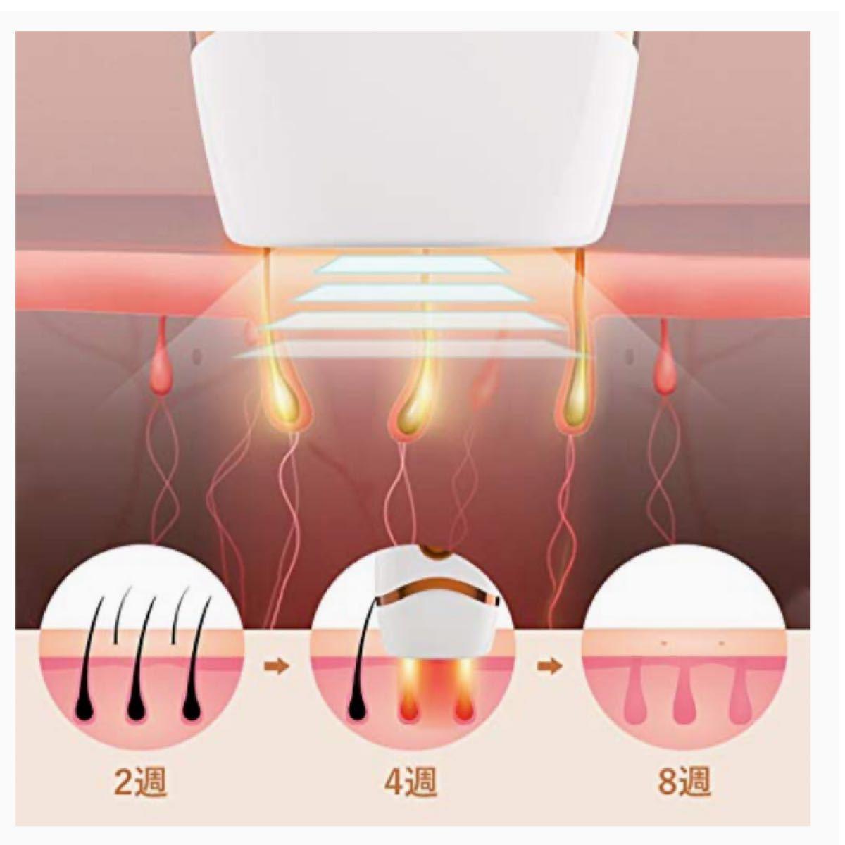 脱毛器 レディース 99万回照射 永久脱毛 IPL光脱毛器 光美容器 5階段 家庭用