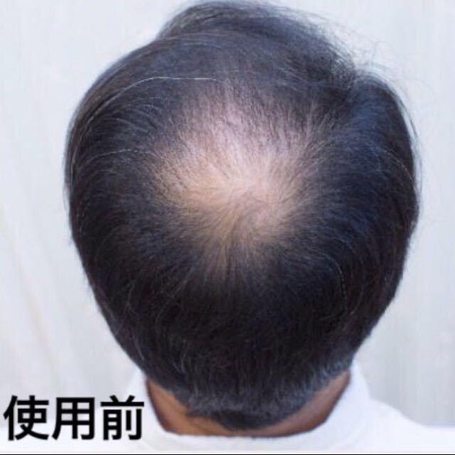 薄毛増毛ふりかけパウダー詰め替え用 頭頂部生え際分け目白髪隠し抜け毛薄毛ハゲかくしスーパーミリオンマイクロヘアーパウダー詰め替え用2