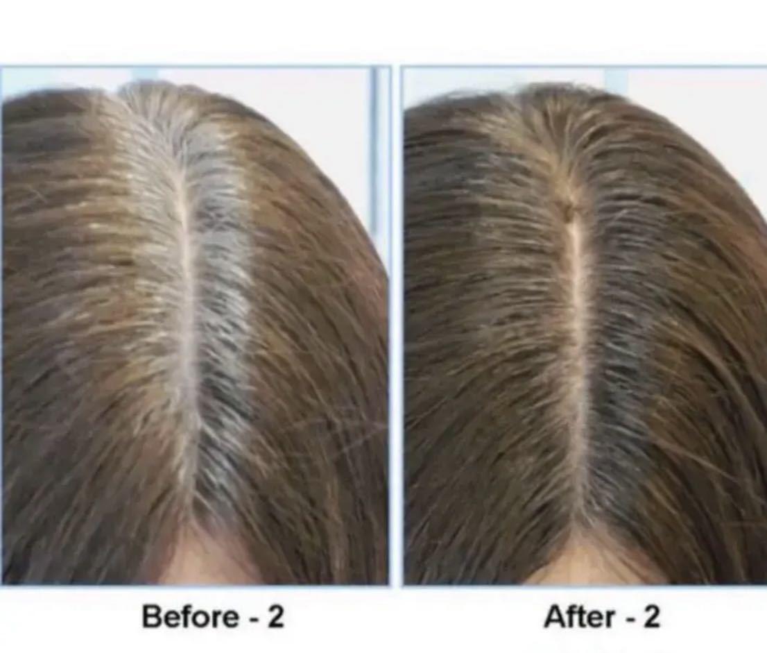 【送料無料・新品】薄毛隠しヘアファンデーション・ブラック(グレー)2個入・ヘアシャドウ・白髪隠し・増毛・ハゲ・薄毛隠しパウダー