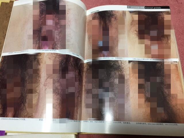 日本女性の外性器 統計学的形態論 日本性科学大系 I  ほぼ新品_画像3