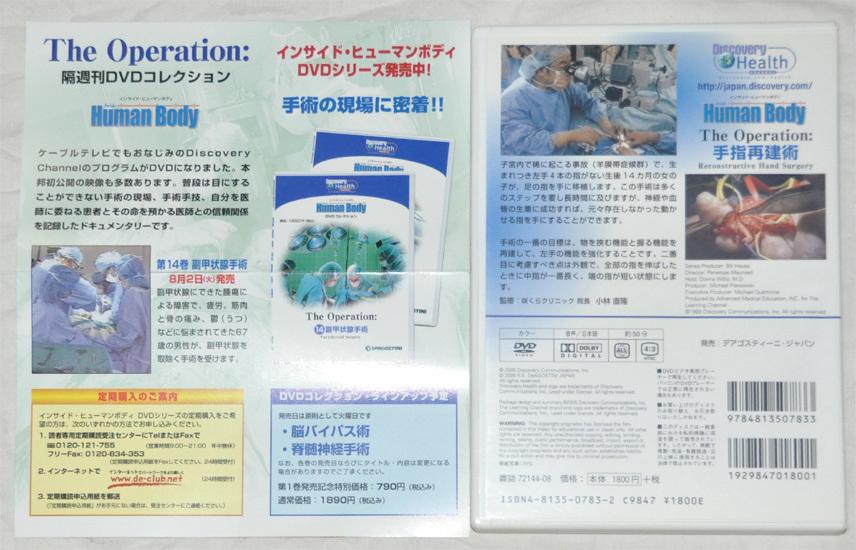 インサイドヒューマンボディ DVD コレクション 13 手指再建術_画像2