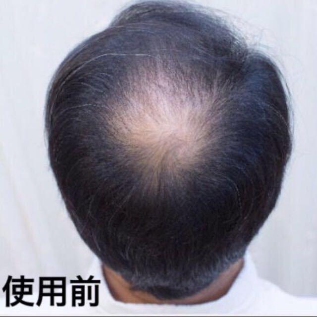 白髪生え際分け目つむじ薄毛禿げ隠しマイクロヘアーパウダー増毛ふりかけカツラスーパーミリオンヘアーウイッグティップトップ薄毛カバーに