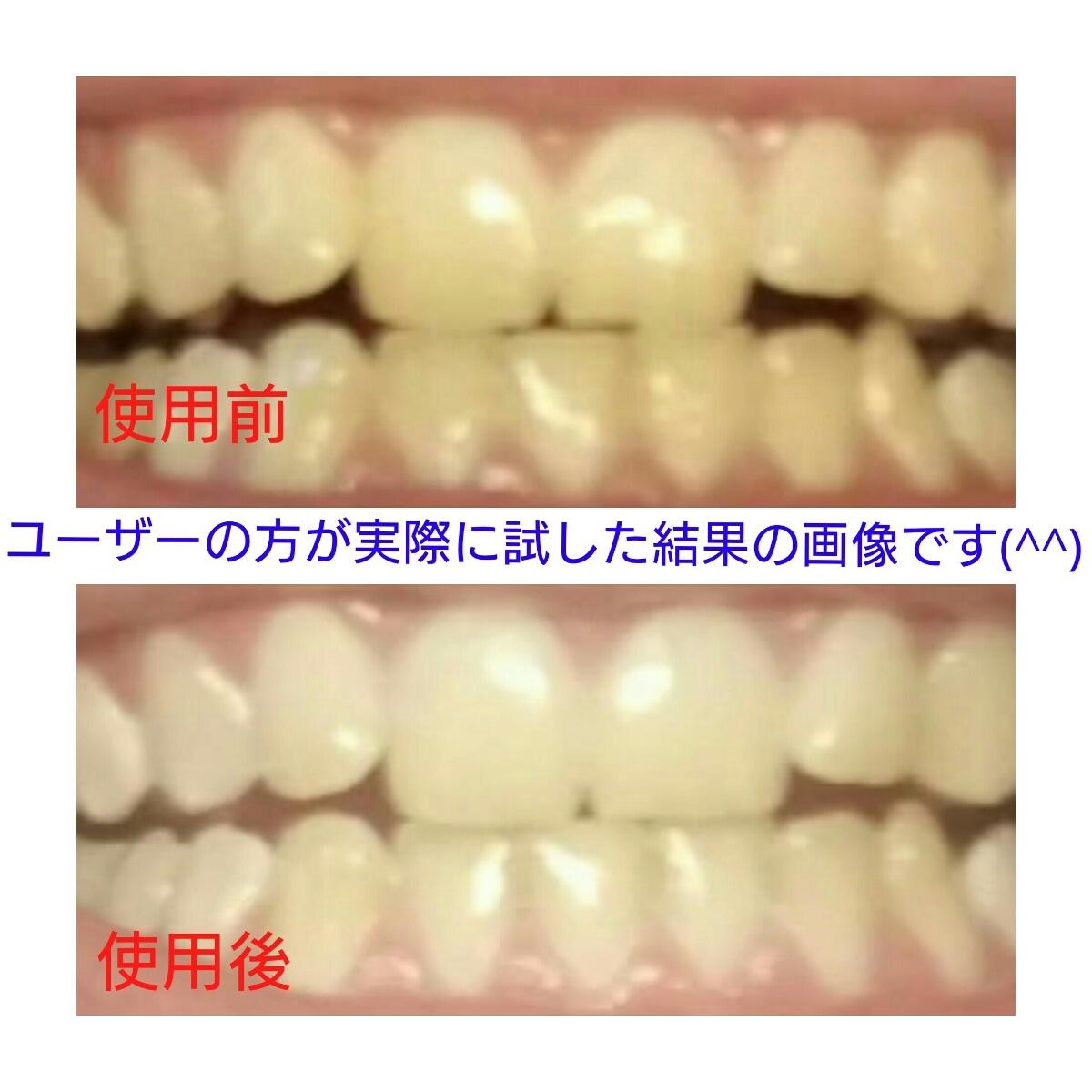 歯にやさしい自宅で簡単歯の本格ホームホワイトニングキットledライト ジェル10本白い歯色素沈着煙草黄ばみヤニタバコ_画像2
