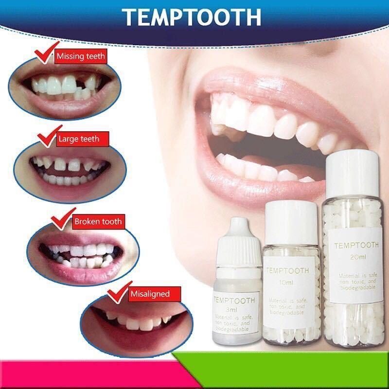 【格安価格】フィッティングビーズ10g《歯の損傷修復、歯の固定》インスタントスマイル 抜け歯、差し歯、歯の補修、粘着に最適~DX_画像4