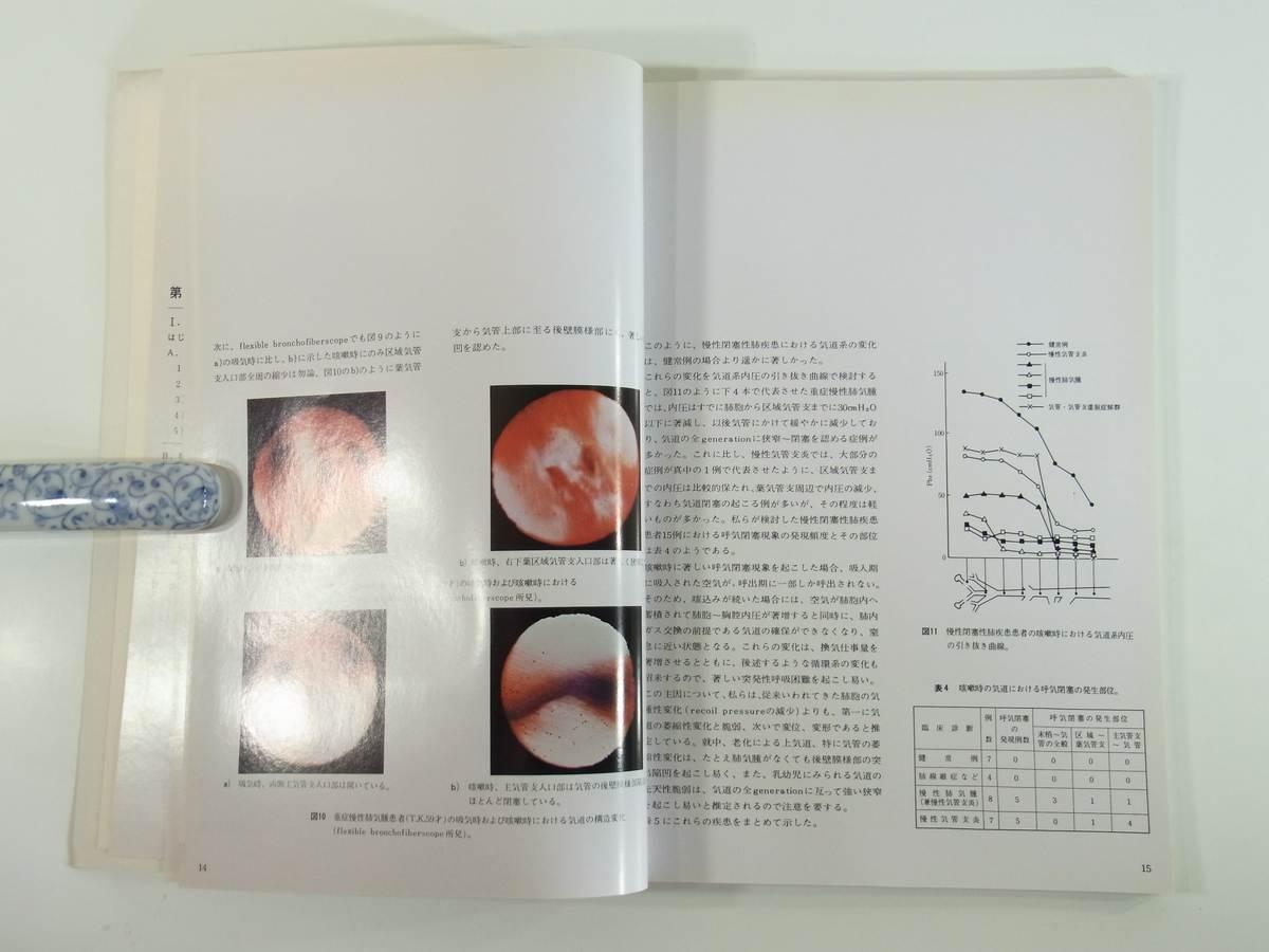 咳嗽、喀痰、血痰・喀血 病態生理・診断と治療 日本C.H.ベーリンガーゾーン 1973 大型本 医学 医療 治療 病院 医者_画像8