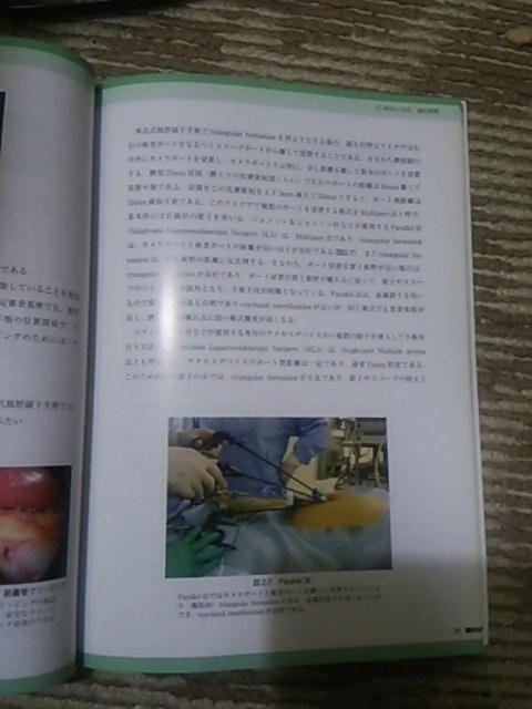 消化器単孔式 腹腔鏡下手術_画像2