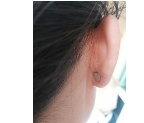 B99【1円~】耳つぼダイエット 高速磁気フット減量マッサージトーリング+ 1対の磁気ヘルスケアイヤリング 減量イヤリングスリミングY061_画像3