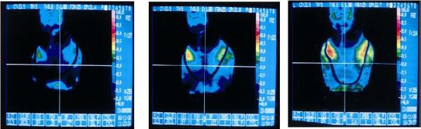 ◆ゲルマの力★純チタン+ゲルマ玉100%ネックレス送料無料◆_画像3